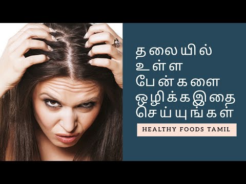 How to Get Rid of Head Lice Fast and Easy at Home | Healthy Foods Tamil