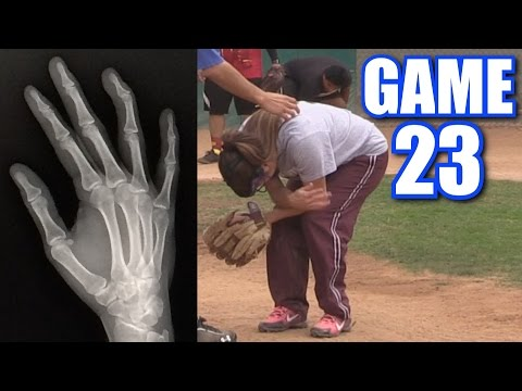 CIARA'S BOYFRIEND BREAKS HER FINGER! | On-Season Softball Series | Game 23