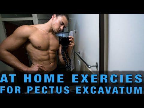 At Home Exercises for Pectus Excavatum