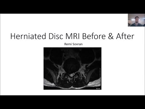 Herniated Disc MRI Before and After Results