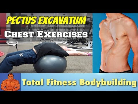 Chest Stretching Exercises for Pectus Excavatum (sunken chest)