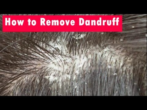 How to Remove Dandruff From Hair | DIY Dandruff Treatment