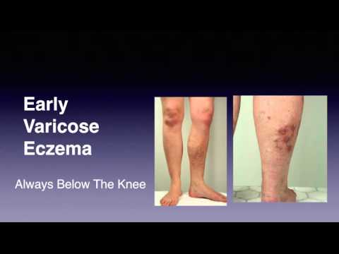How To Know If You Have Varicose Eczema: Signs and Symptoms of Venous Eczema