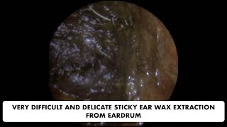 VERY DIFFICULT AND DELICATE STICKY EAR WAX EXTRACTION FROM EARDRUM - Ep 30