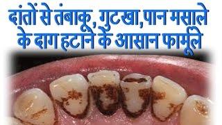 दांतों से तंबाकू, गुटखा,पान मसाले के दाग हटाने के आसान फार्मूले    Ayurved Samadhan   