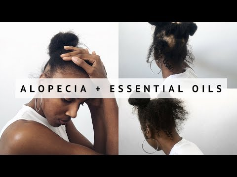 Curing Alopecia Naturally + Essential Oils | (UPDATE)