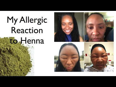 My Allergic Reaction to Henna
