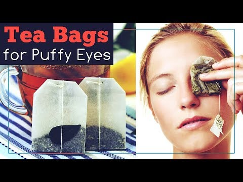 Tea Bags for Puffy Eyes: This is How to Use Them!