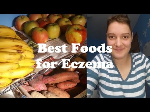 My Weekly Food Haul to Heal Eczema Naturally