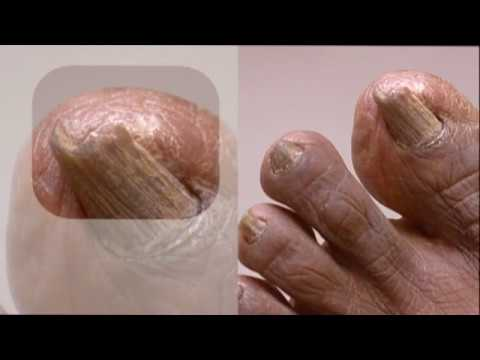 Indigenous Diabetic Foot, Curly toenails, Crooked toes, Bunions