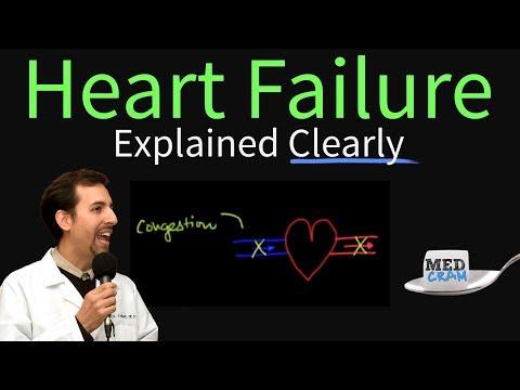 Heart Failure Explained Clearly - Congestive Heart Failure (CHF)
