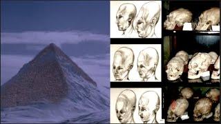 Flash Frozen Civilization found in Antarctica of Elongated Paracus Skulls
