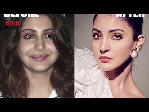 Xxx Mp4 Bollywood की बड़ी बड़ी अभिनेत्री जिन्होंने खूबसूरत दिखने के लिए कराई प्लास्टिक सर्जरी Bollywood News 3gp Sex