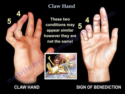Claw Hand, Ulnar Claw Hand - Everything You Need To Know - Dr. Nabil Ebraheim