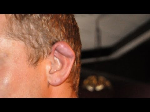 What Is Cauliflower Ear?   Ear Problems