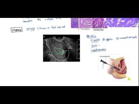 Endometrial Cancer and Hyperplasia for USMLE