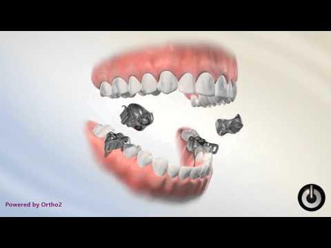 Missing Teeth and Braces