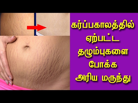 How To Get Rid of Stretch Marks With Aloe Vera in Tamil - Beauty Tips in Tamil