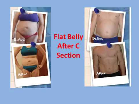 Flat Belly After C Section [GUARANTEED!]