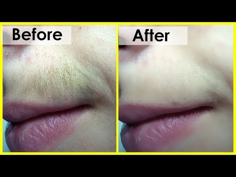 How to Remove Unwanted Hair Forever in Just 5 Minutes || Remove Unwanted Hair Permanently At Home
