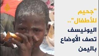"#x202b;اليونيسيف تصف الوضع باليمن بـ""جحيم للأطفال"" 🇾🇪#x202c;lrm;"