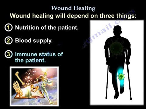 Wound Healing , nutrition - Everything You Need To Know - Dr. Nabil Ebraheim