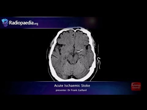 Stroke: Acute infarction - radiology video tutorial (CT, MRI, angiography)