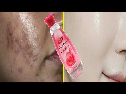 Rose Water मैं यह चीज मिला कर तो देखें चेहरे से डार्क स्पॉट कालापन गायब कर देगा यह उपाय -Dark Spots