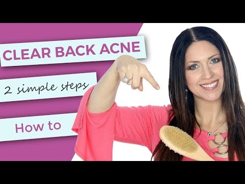 How To Clear Back Acne | Bacne Treatments at Home