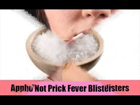 8 Simple Home Remedies For Fever Blisters