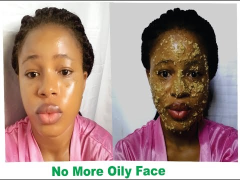GET RID OF OILY FACE NATURALLY | CLEARS ACNE AND PIMPLES