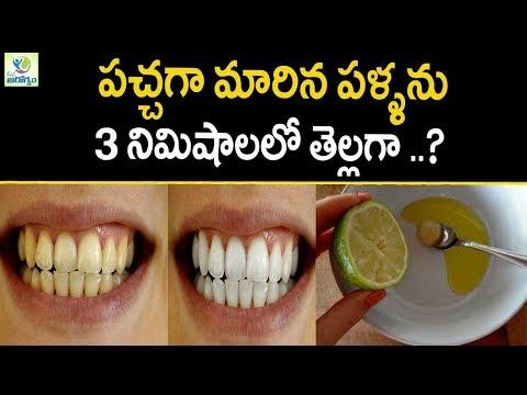 Teeth Whitening At Home In 3 Minutes  - Mana Arogyam | Teeth Care Tips