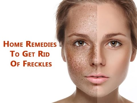 How to Get Rid of Freckles - Natural ways to remove freckles | Skin care tips HD