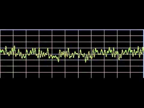 Sleep Apnea - Rife Frequencies