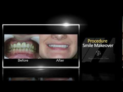 Smile Makeover, Before and After | Dental Surgery Birmingham | Call Us 0121 285 4889