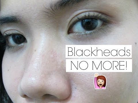 HOW TO REMOVE YOUR BLACKHEADS & WHITEHEADS?!