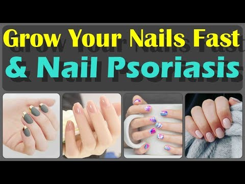 Top 10 Ways To Grow Your Nails Fast And Home Remedies for Nail Psoriasis And Psoriasis Symptoms