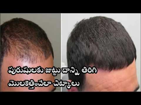 Hair Regrowth Tips for Men in telugu