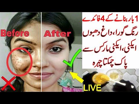 Best Homemade Skin Whitening Face Pack | Get Fair, Spotless, Glowing Skin Permanently In Urdu/Hindi