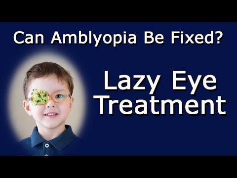 Lazy Eye Treatment - Can Amblyopia Be Fixed?