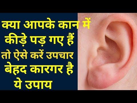 कान के कीड़े का इलाज