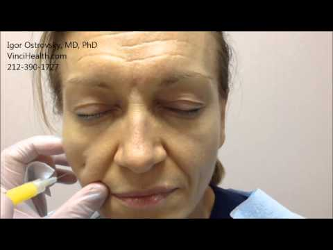 Facial rejuvenation nassau county