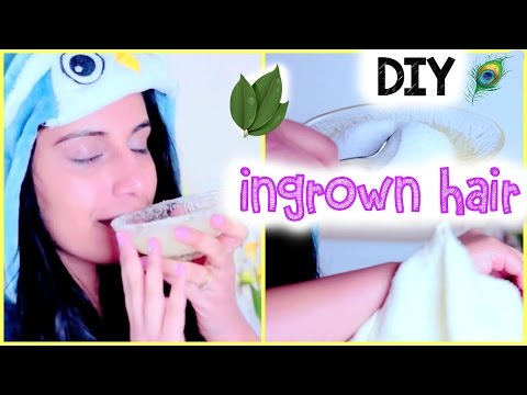DIY How to Get Rid of Ingrown Hair on Legs (and Body) FAST. Get Rid of Blackheads & Whiteheads {DIY}