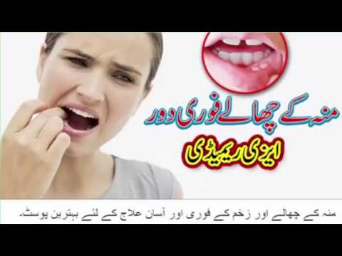 Health tips II How to cure mouth sores naturally in Urdu