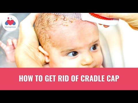 How to get rid of Cradle Cap | S01 | E06