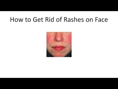How to Get Rid of Rashes on Face | Home Remedy for Heat Rashes | Homemade Solutions for Rashes
