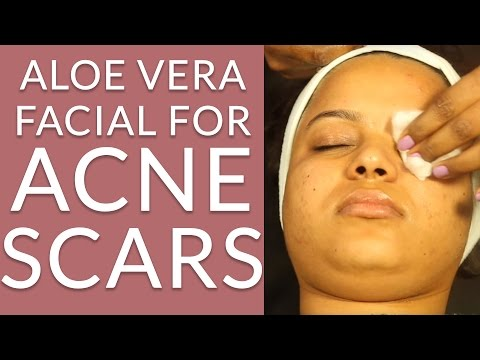 How To Make ALOE VERA FACIAL AT HOME - Acne Face Mask