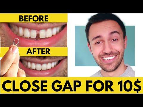 DIY: CLOSE Gap Teeth in 40 DAYS (Full Explanation)