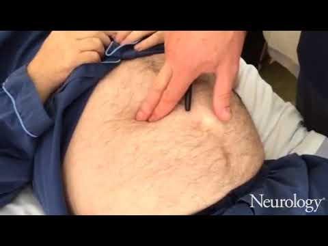 Abdominal tremor in thyrotoxicosis