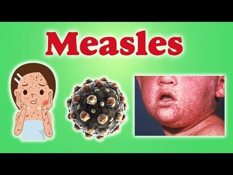 Measles - इस भयानक रोग से रखें अपने बच्चों को दूर।